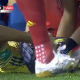 Colombia-Venezuela, infortunio terribile per Arias (ex obiettivo del Napoli): ora la sua carriera è a rischio [VIDEO]