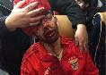 Choc in Portogallo, sassaiola contro il bus del Benfica: 2 giocatori finiscono all'ospedale