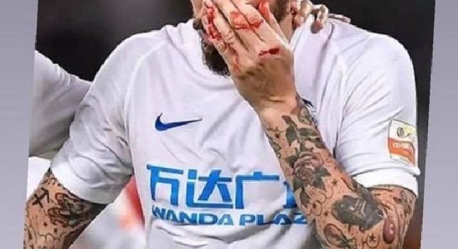 Inconveniente per Hamsik in Cina: colpo al volto, esce sanguinante dal campo [FOTO]